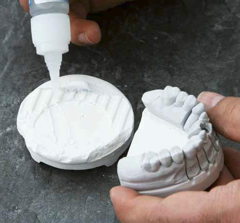 High strength super glue used to bond teeth onto a dental casting